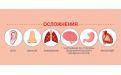 Рекомендации по профилактике коронавируса - Image preview 2