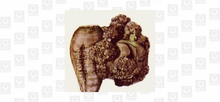 Туберкулез свеклы - Xanthomonas beticola (Smith, Brown,Townsend) Savelescu (=Bacterium beticolum Smith, Brown, Townsend; Pantoea agglomeran spv. betae)